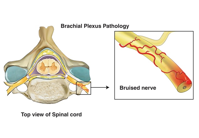 Illustration of a contusion bruise during a brachial plexus injury.