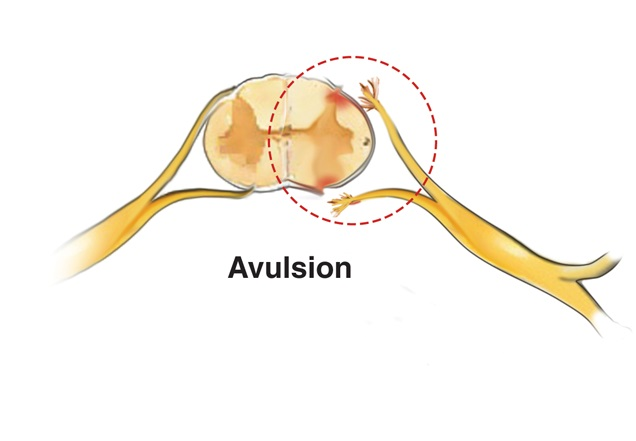 Illustration of a brachial plexus injury caused by a nerve avulsion.