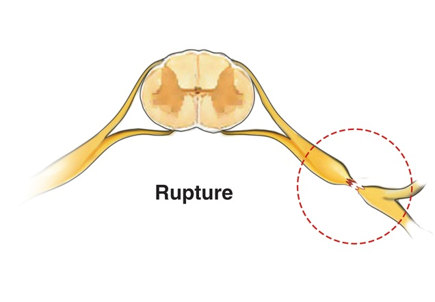 Illustration of a brachial plexus injury caused by a nerve rupture.
