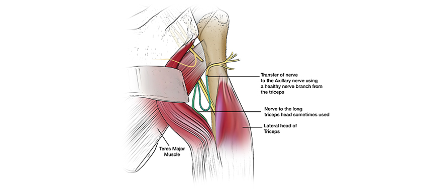 Illustration shows a healthy nerve from the bicep being transferred to the axillary nerve during a nerve transfer surgery for a brachial plexus injury.