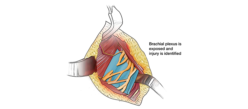 Illustration showing the brachial plexus injury during surgery.