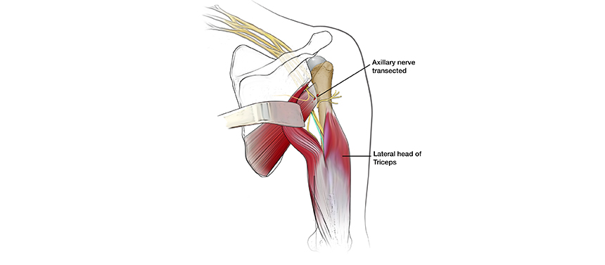 Illustration shows a damaged nerve being connected to aa healthy one during brachial plexus nerve transfer surgery.