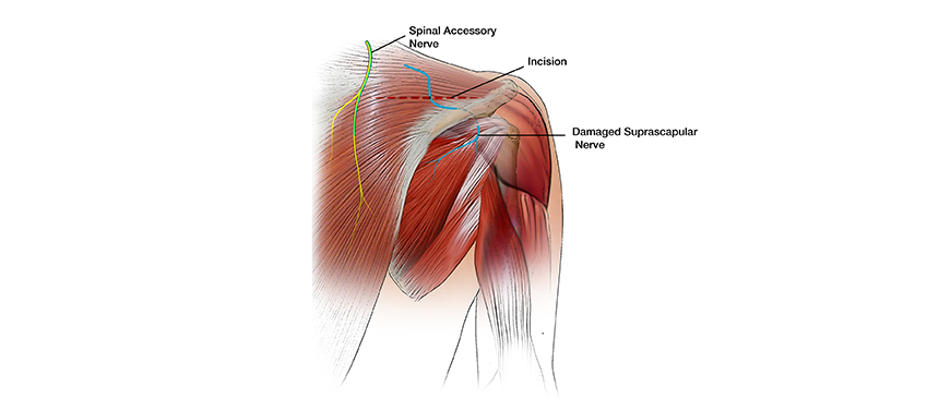 Illustration shows the incision made over the shoulder blade during a surgery to restore shoulder abduction for a brachial plexus injury.