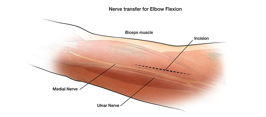 Illustration shows the incision made on the upper arm during surgery to restor elbow movement for a brachial plexus injury.