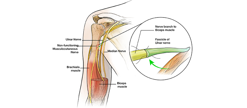 Illustration shows the healthy ulnar nerve used to repair the damaged nerve to restore elbow movement for a brachial plexus injury.