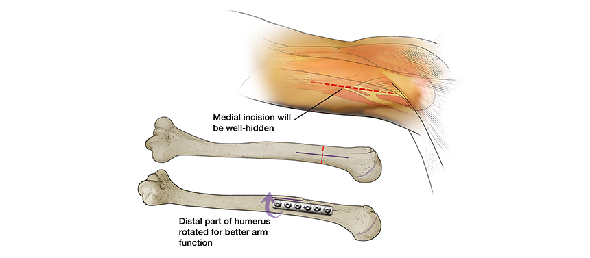 Illustration shows the plate and screws used to keep the bones in place after a humeral osteotomy to repair a brachial plexus injury.